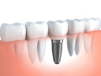 czy implanty są zdrowe?